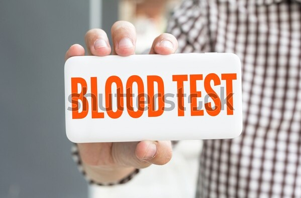 Four Things You Must Know Before a Blood Test